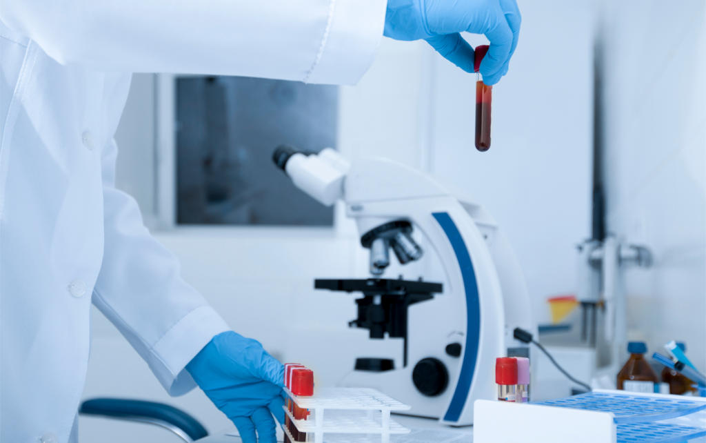 blood in the tube for testing in the lab